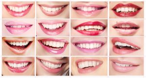 porcelain veneers in pasadena