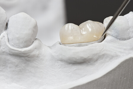 Model of smile with dental crown