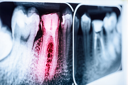 X-ray with red tinted tooth