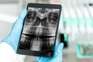 Dentist looks at x-ray on tablet