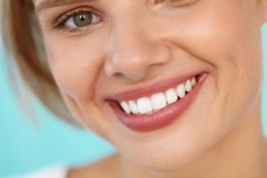 Smiling woman with gum recontouring and porcelain veneers in Pasadena